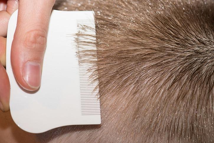 Důkladná kontrola hlavy a vyčesávání speciálním hřebínkem všiváčkem pomůže se vší zbavit
