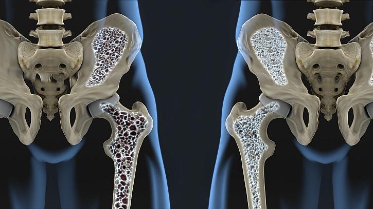 Osteoporóza svůj příchod nehlásí (Zdroj: Vanilla)