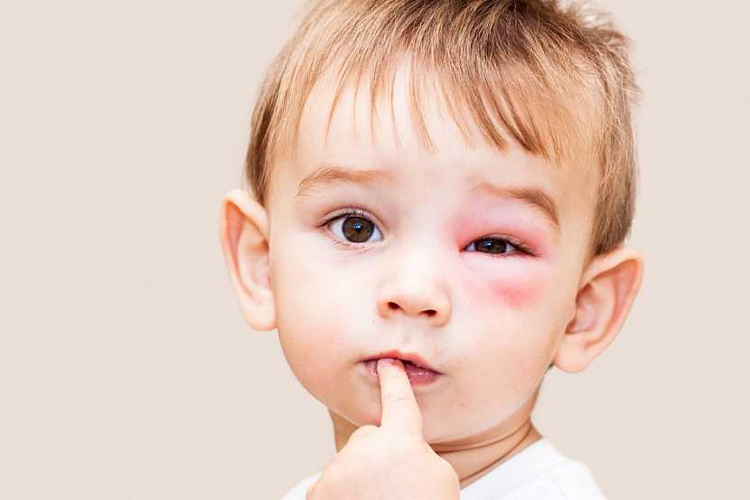 Bodnutí u dětí, zejména kolem očí, věnujte vždy zvýšenou pozornost