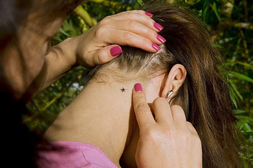 Klíště zakousnuté na zátylku u vlasů