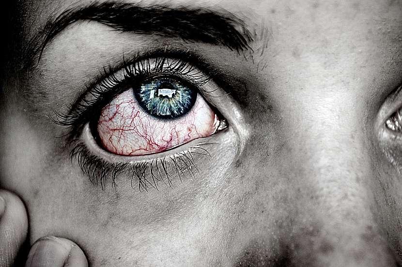 Zarudlé oko